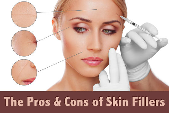 The Pros and Cons of Skin Fillers - Wrinkle Fillers - Facial Fillers