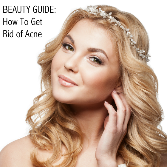 Beauty Guide - How To Get Rid of Acne