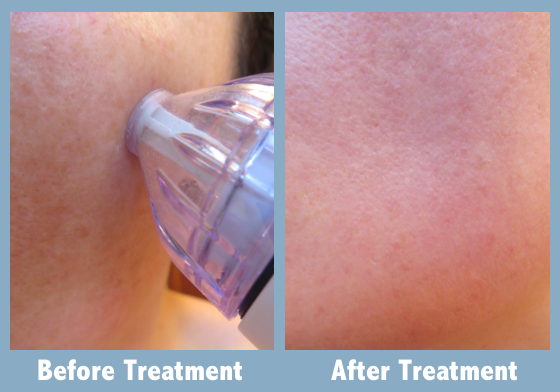PMD Personal Microderm Device Before and After Treatment