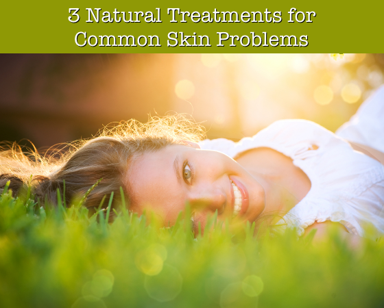 3 Natural Treatments for Common Skin Problems
