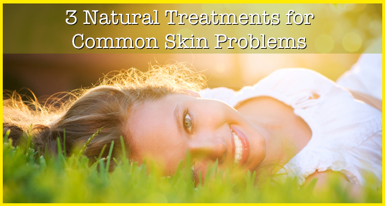 3 Natural Treatments for Skin Problems