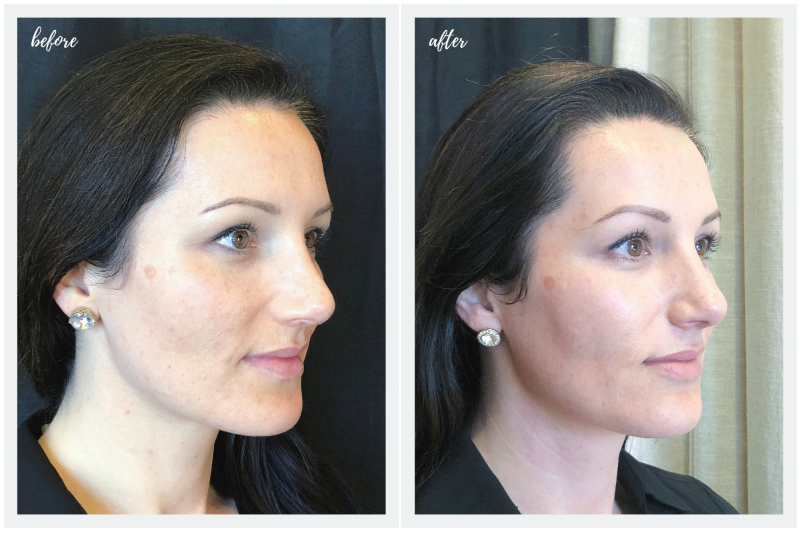 Face First Laser Skincare Series - Before and After Photos